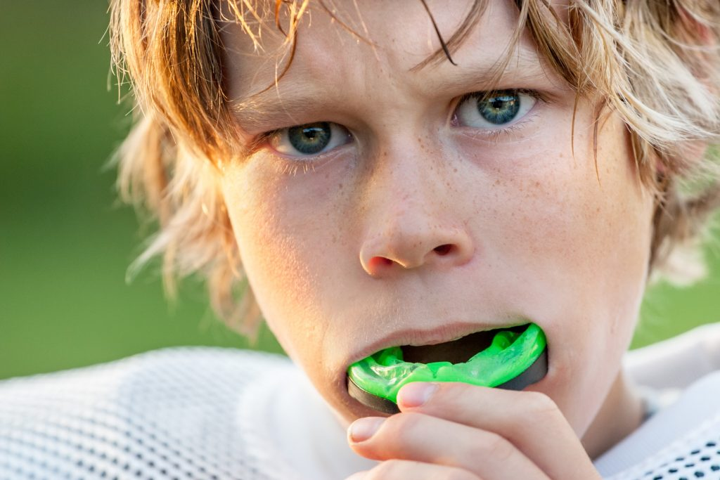 Custom mouthguards in Canberra