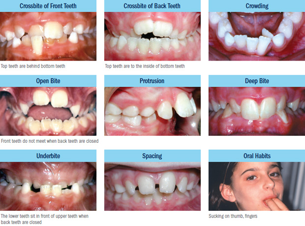 Orthodontics in Canberra