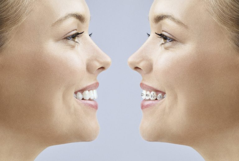Invisalign In Canberra Vs Braces